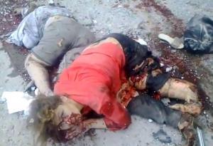 Frau ohne Beine nach dem Luftangriff auf Lugansk